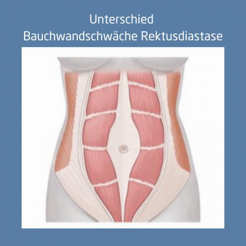 Bauchwandschwäche